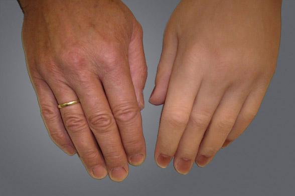 Silikonprothese